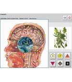 25 D METATRON HUNTER - NLS - Aparat de diagnoza si tratament prin biorezonanta magnetica (cod E42-1)