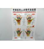 Hand map for reflexology (code H07)